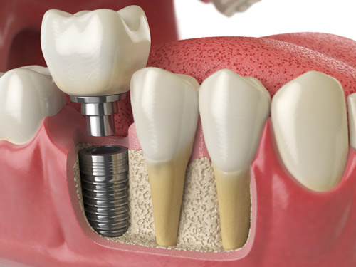 Cross section model for dental implants